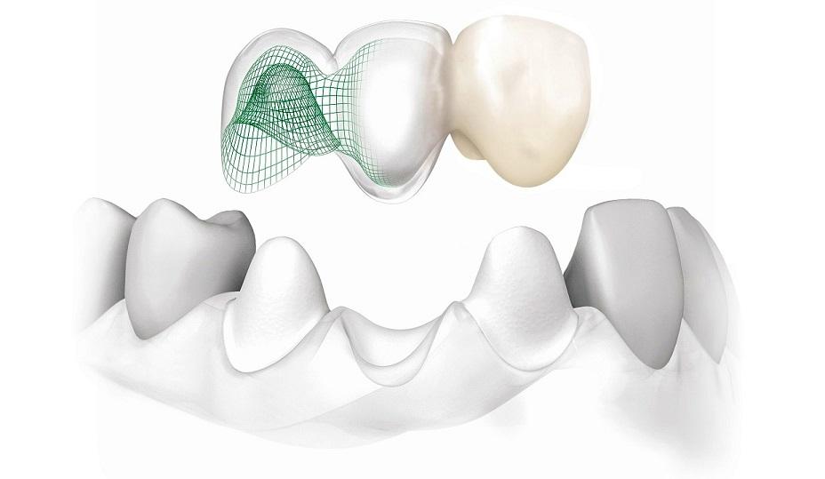 zirconium teeth